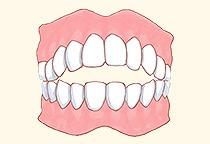 前歯が噛み合わない<